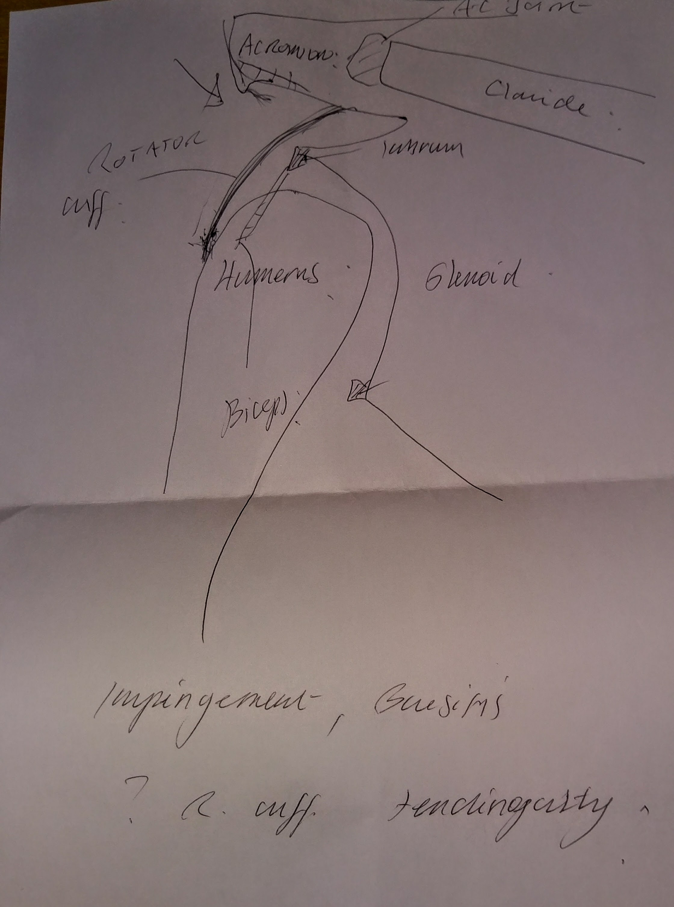 Impingement, bursitis, rotator cuff tendinopathy as drawn by the specialist.